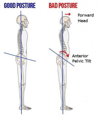 Anterior Pelvic Tilt (pictured right