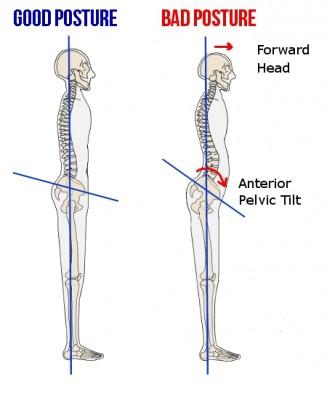 Anterior Pelvic Tilt (pictured right